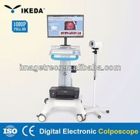 electronic colposcope software/gynecology optical binocular colposcope