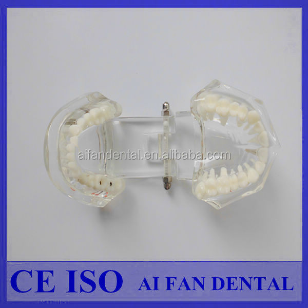[AiFan Dental] Alibaba China Fornecedor de Implante Dental Estudo Modelo ZYR-2001