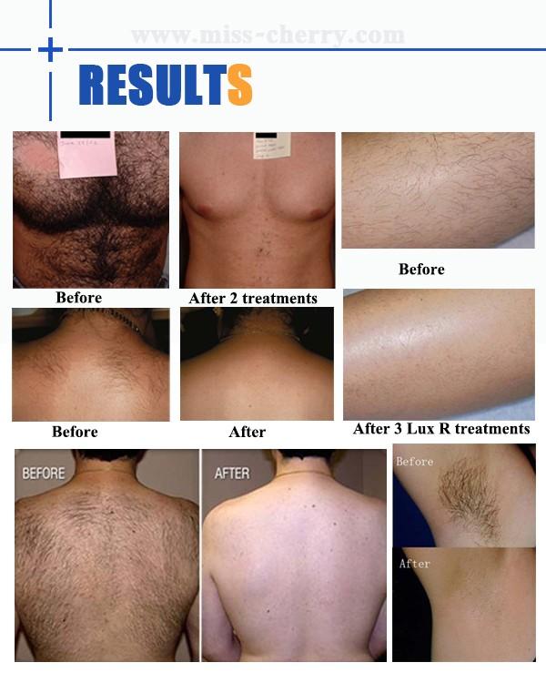 Как удалить все волосы на теле в домашних условиях 660