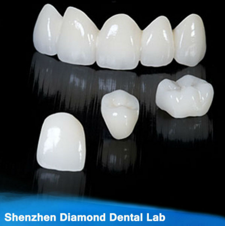 Dental Zirconia Ceramic Crown Quality Customized False Teeth Supply