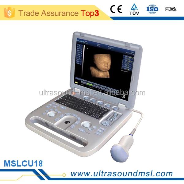 ultrasound machine pregnancy