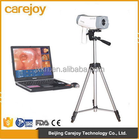 Factory price hot sale Electronic portable digital video colposcope for gynecology