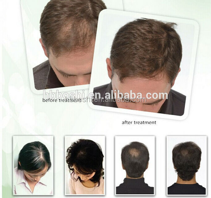 Medical hospital laser comb brush for hair restoration
