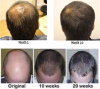 High effective magic hair growth
