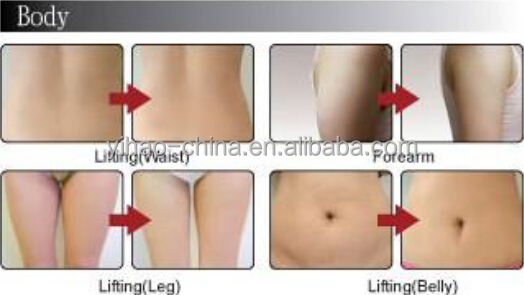 Alibaba France! RU+5 (New product) slimming rf cavitation machine