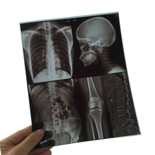 8X10 Inch X-ray Inkjet Medical Film for Inkjet Agfa Printer