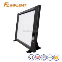 Single LED x ray Film reader film vewer