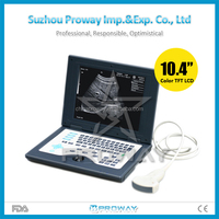 10.4 inch Full Digital PC Ultrasound Scanner/Human Use Laptop Ultrasound Scanner Machine(PRUS-C5800)