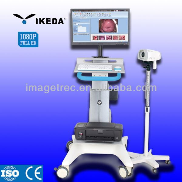 medical electronic devices/colposcope software/plastic vagina images picture