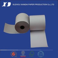 2015 Most Popular&High Quality ecg thermal paper top sale product