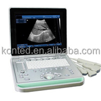 Konted C8 B/W Laptop Ultrasound Digital Pregnancy Diagnosis