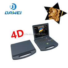 DW-C60 DAWEI Portable Laptop 4D Color Doppler Ultrasound System Machine Factory Price with CE ISO Approval