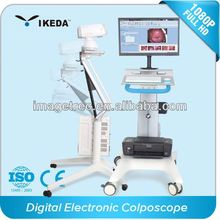 digital electric colposcope/surgery vagina diagnostic