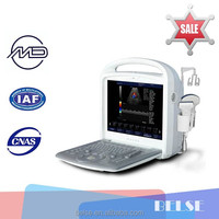 cardiac ultrasound machine and echo color doppler system BLS-X3