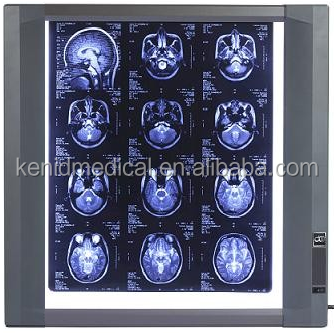 Factory Ultral Slim Medical LED X Ray Imaging Film Viewer