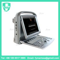 FY-ECO5 Second Hand Used Color Doppler Ultrasound Price
