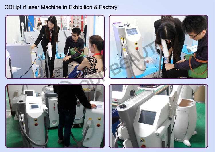 Toppest keyword: OPT SHR IPL + 10HZ Laser + RF Multi Beauty Machine
