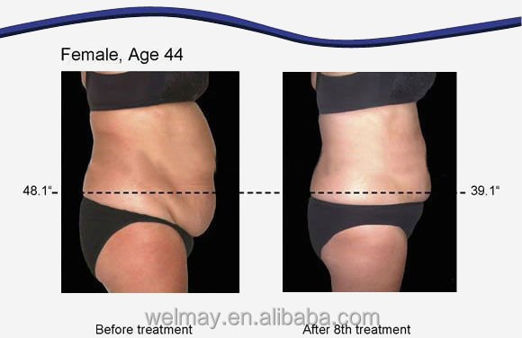 Cost effective best lipo laser weight loss treatment lipo laser for
