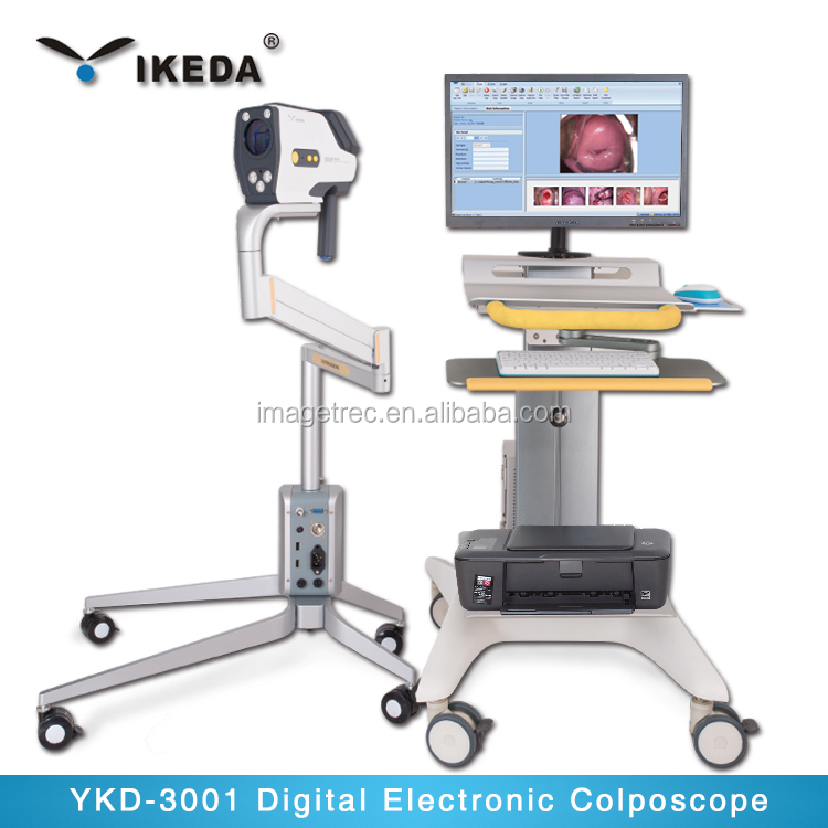 YKD-3002 Digital Electronic Colposcope