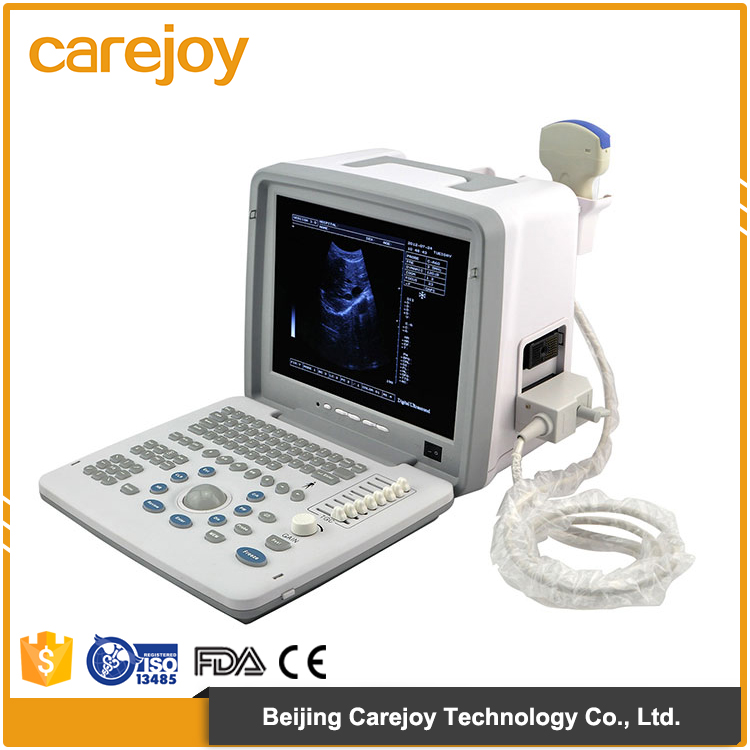 China making high performance low price portable mini ultrasound machine for sale
