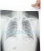 kodak film processor dental x -ray filmless xray new product