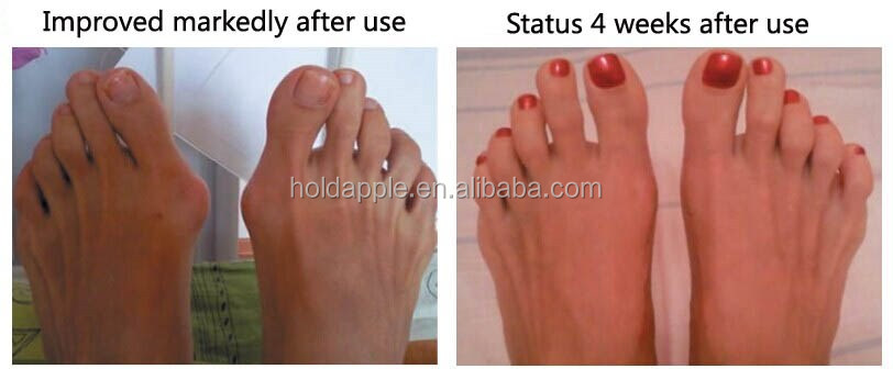Silicone Gel foot fingers Two Hole Toe Separator Thumb Valgus Protector HA00490