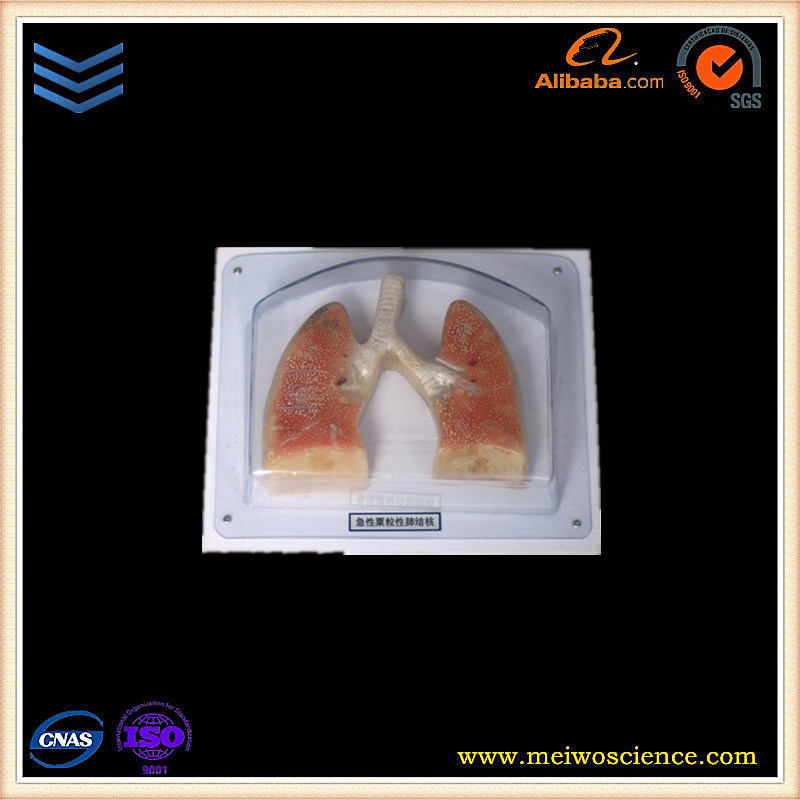 acute military tuberculosis of lung medical teaching anatomy model