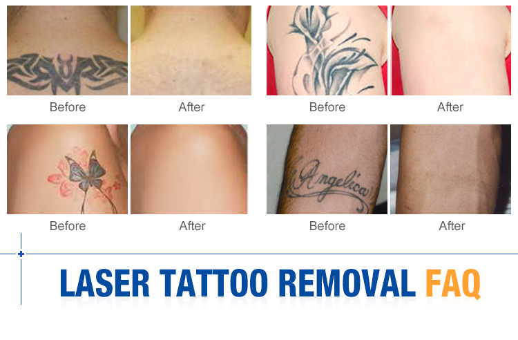Professional tattoo removal q switched nd yag laser for for Laser remove tattoo price