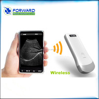 China made mini portable ultrasound machine price / pregnancy scanner ultrasound / Wireless linear probe