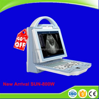 Full Digital Ultrasound Laptop LED Vascular New Ultrasound Device