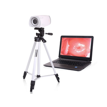 CE/ISO Approved Medical Digital Video Gynecology Colposcope for Vagina