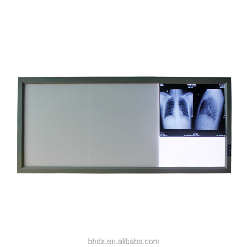 LED Medical Negatoscope X Ray Film Viewer for Hospital Dental Clinic Use