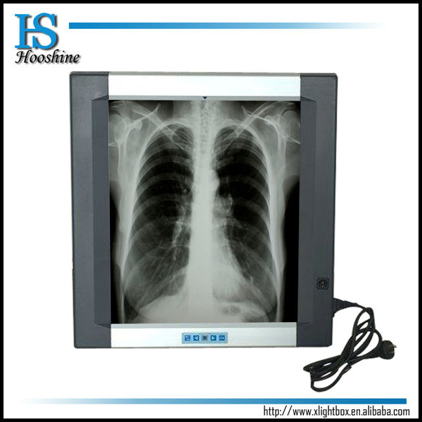 One Bank Medical X ray Film Viewer,500*530mm,can be customized