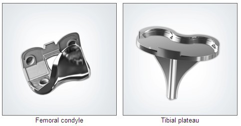 knee replacement prothesis