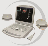 Widely Used Compact Laptop Portable Color Doppler Medical Diagnostic Ultrasound Machine Price