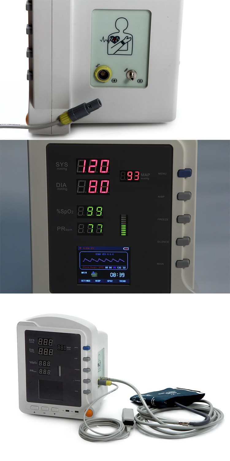 Competitive price Vital Sign NIBP SpO2 Monitoring adult pediatric and neonatal Portable multiparameter patient monitor china