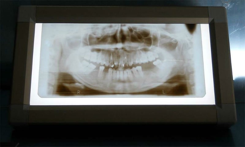 X-Ray Film Viewer/dental x ray viewer(CE&ISO9001 approved)