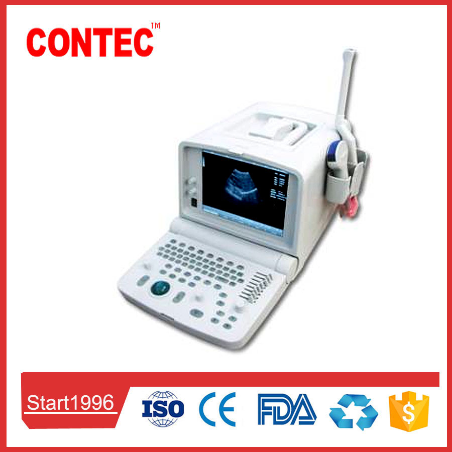 CONTEC CMS600B1 Portable B-Ultrasound Diagnostic Scanner