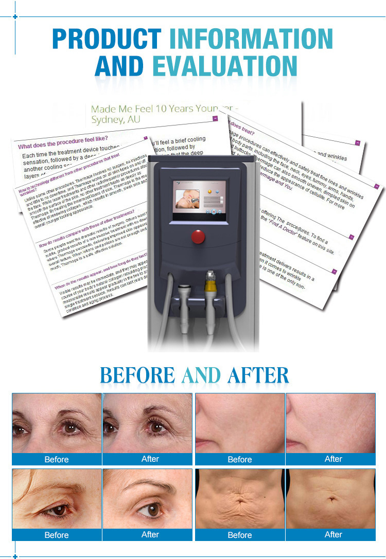 Spa equipment machine cryo therapy micro needle fractional rf beauty equipment