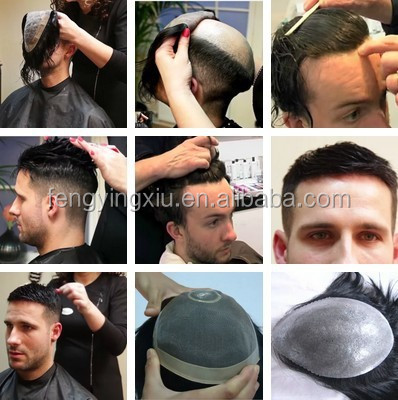Non surgical men hair replacement, hair piece, men toupee