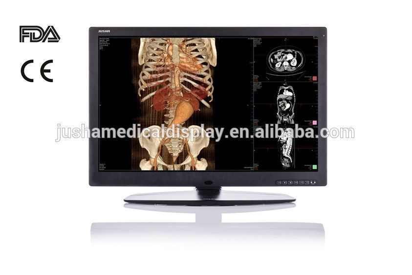 (JUSHA-C61) 6MP Color cr x-ray Monitor computer radiograph reading system monitor
