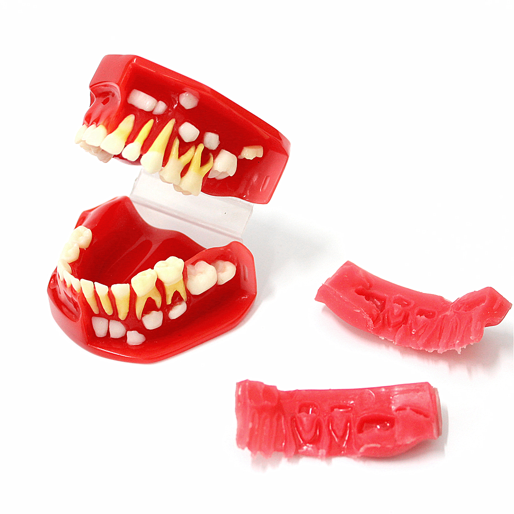 removable 3D teeth anatomical medical model