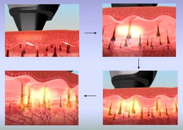 Diodo Laser de Diodo Depilação Removedor de Pêlos