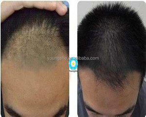 Anti-Hair Loss raw material Minoxidil / RU58841/ Setipiprant Cas# 154992-24-2