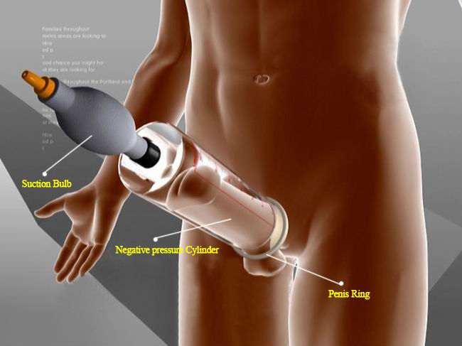 JER Supply EA13M Male penis enlargement machine