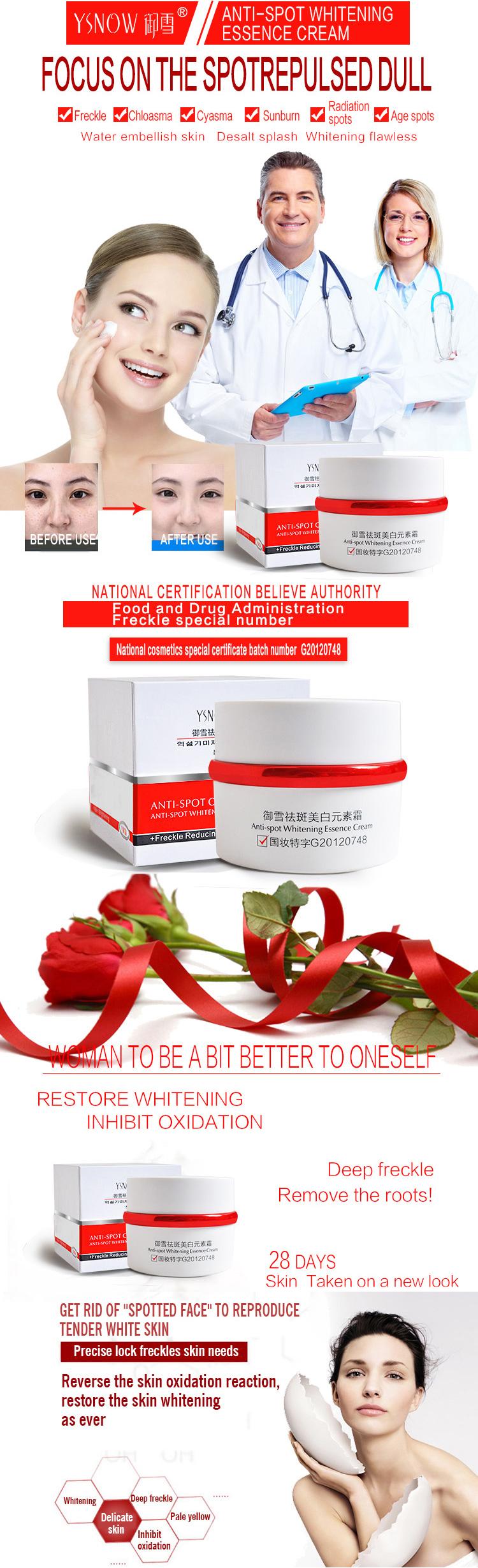 Korean Beauty Skin Spot Remover Face Lotion Hot Sale Popular Whitening Anti Freckle Facial Cream