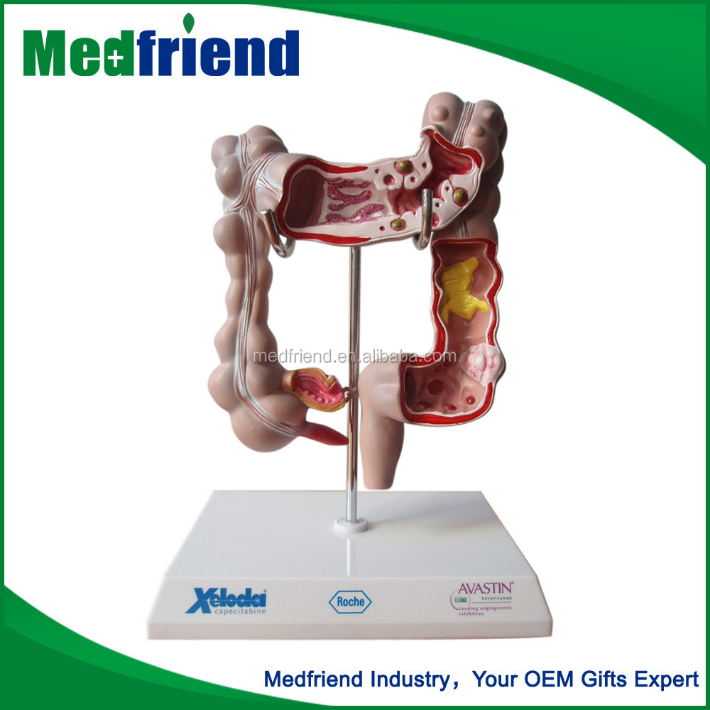MFM019 Chinese Products Wholesale Intestinal Model