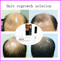 Strong Effect FEG Hair Regrow Liquid For Anti-loss prevention Solution Hair Loss serum Treatment grow Thicker Longer and Fuller