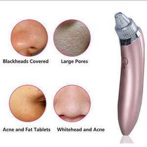Top sale the best acne treatment, Facial pore cleaner Vacuum blackhead remover