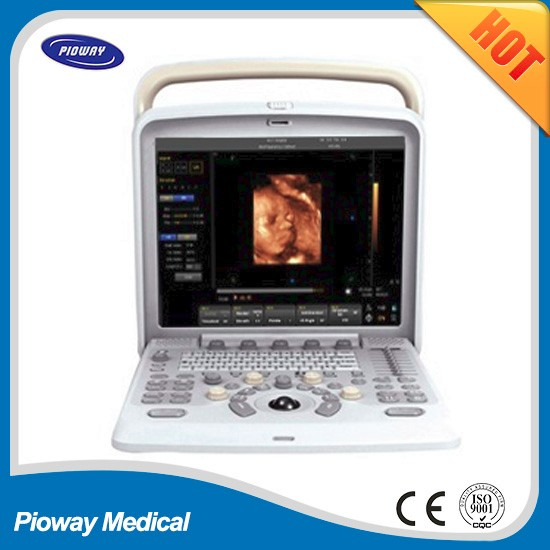 chison q5 ultrasound best quality similar to mindray ultrasound, CE ISO FDA Certificate